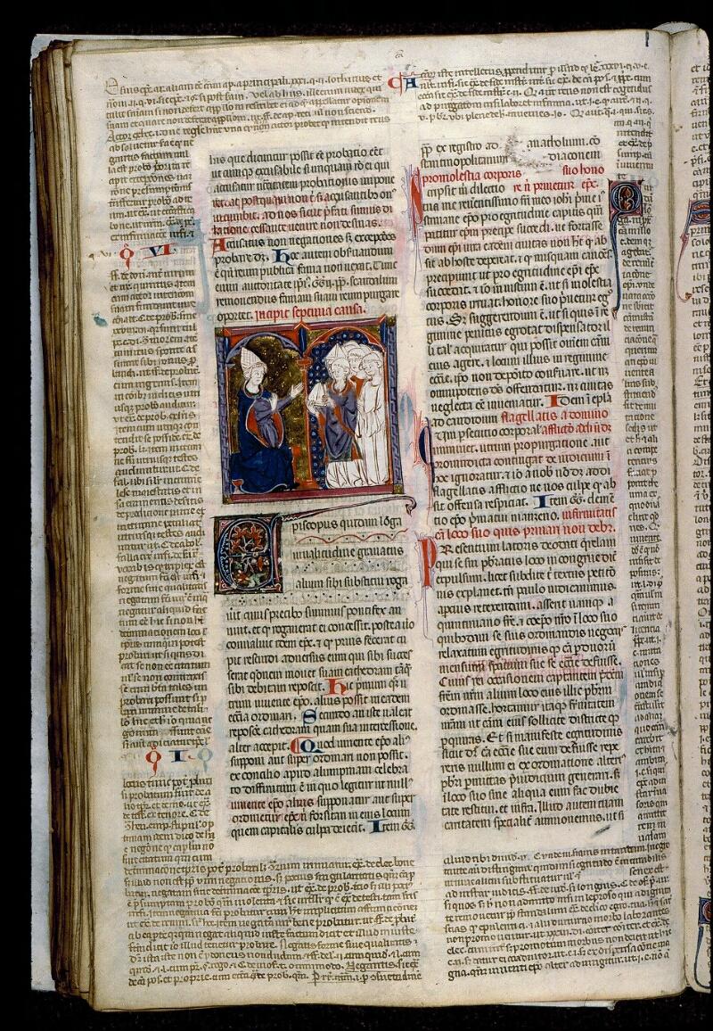 Angers, Bibl. mun., ms. 0372, f. 154v - vue 1