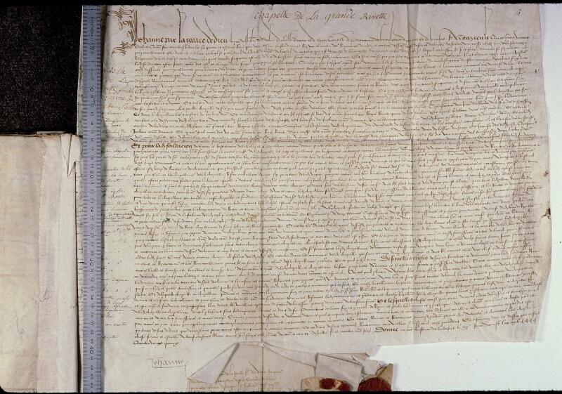 Angers, Bibl. mun., ms. 0794, f. 010 - vue 1