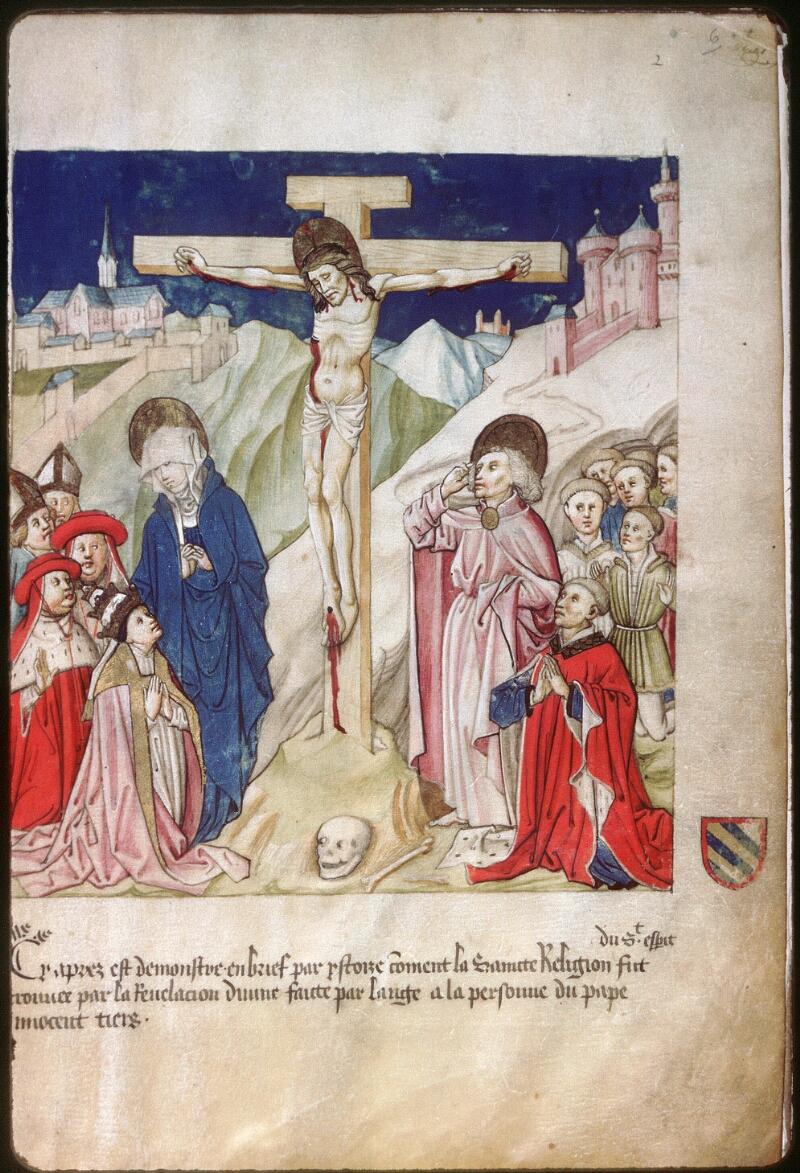 Dijon, Arch. hosp., A H 4, f. 006