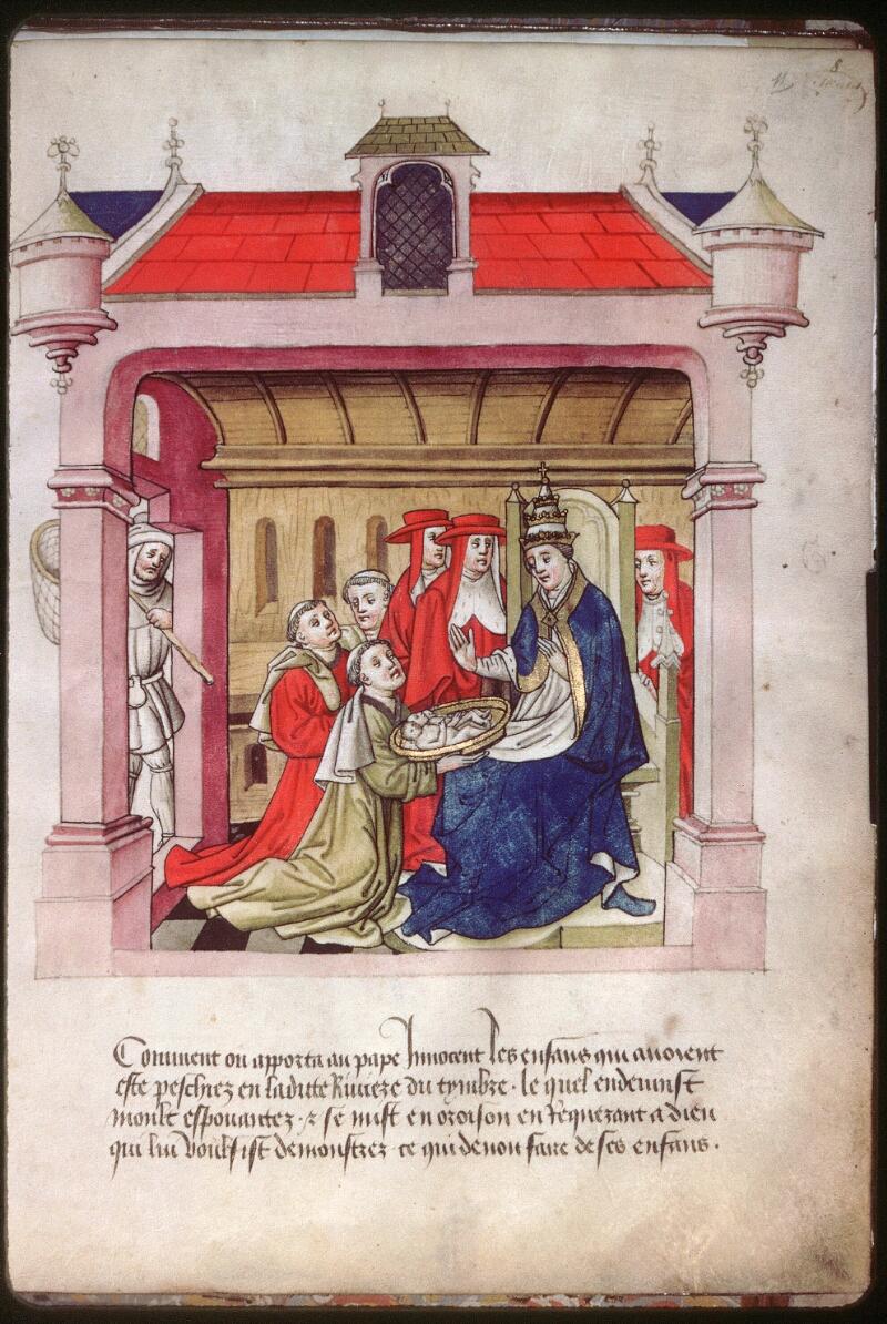 Dijon, Arch. hosp., A H 4, f. 011