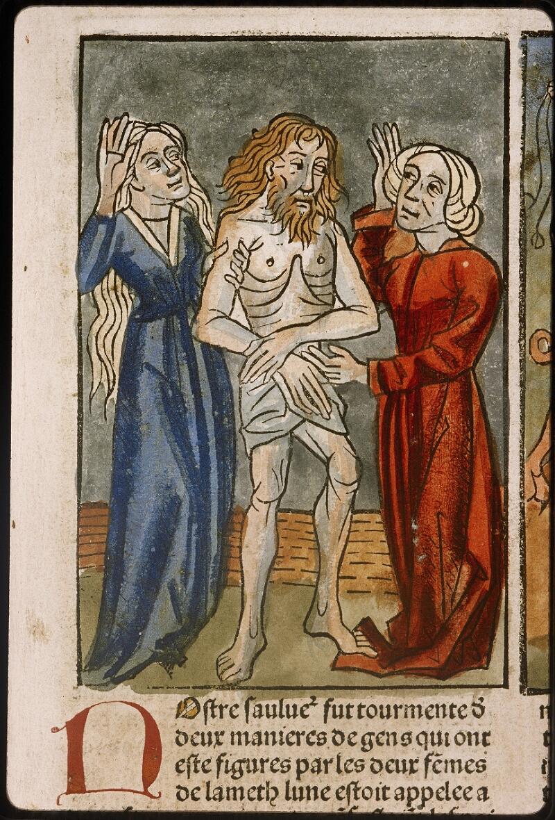 Lyon, Bibl. mun., inc. 1043, f. 420 - vue 1