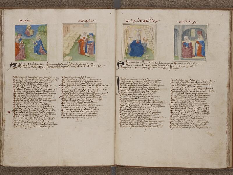 SAINT-OMER, Bibliothèque municipale, 0183, f. 034v - 035r
